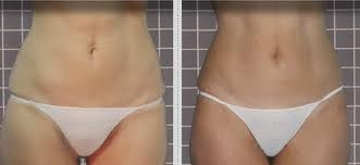 Anti cellulite - beautycell
